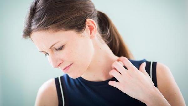 ストレスで蕁麻疹が出たときに自分でできる対処法